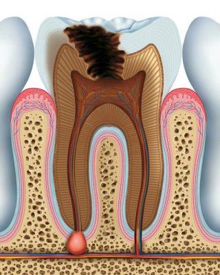 Phân loại bệnh lý tủy răng